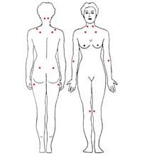 Beter leven met fibromyalgie: Tips Om De Klachten Te Verminderen