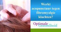 Kan acupunctuur werken tegen fibromyalgie