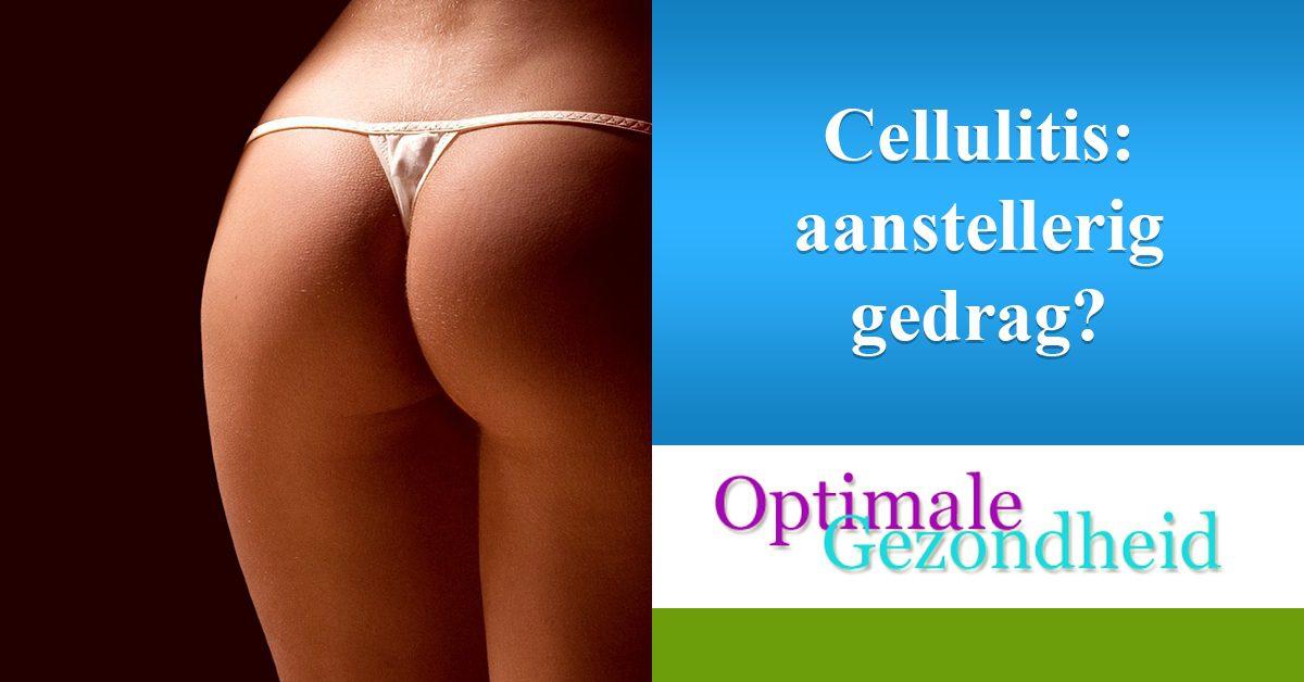 hoe erg is cellulitis