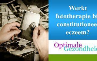fototherapie en constitutioneel eczeem