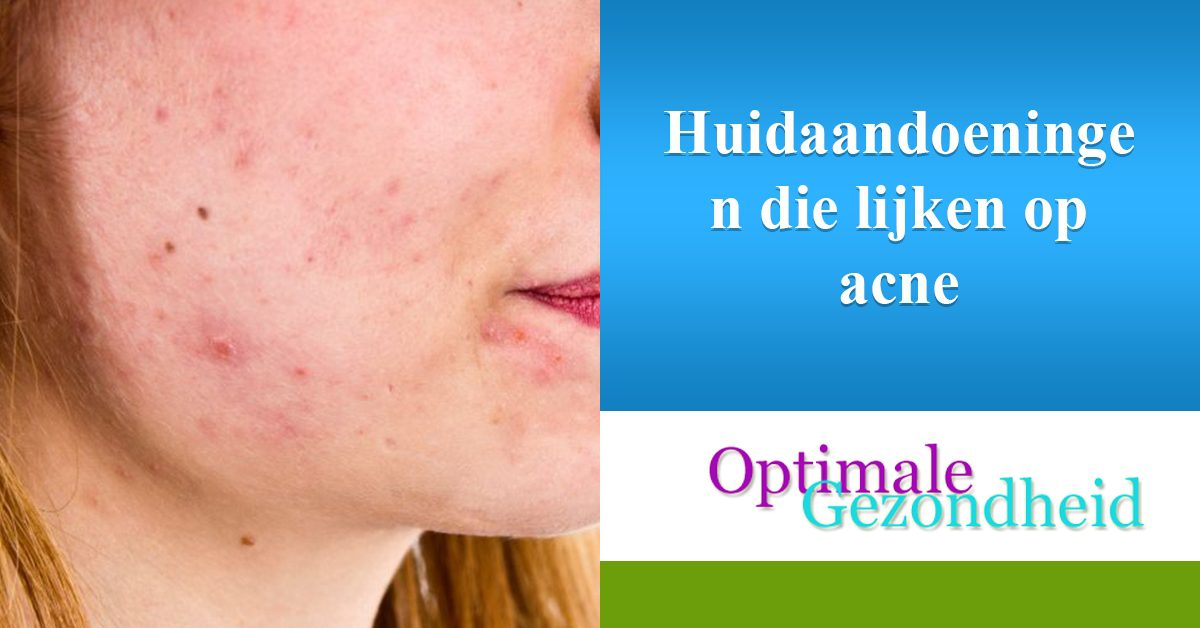 Huidaandoeningen die op acne lijken