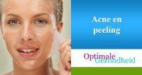 acne en peeling