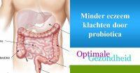 Minder eczeem door probiotica