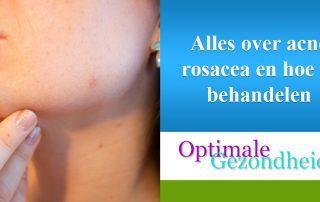 alles over acne rosacea