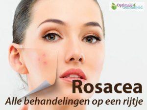 rosacea behandeling vergoeding