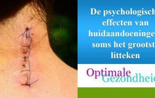 psychologische effect van huidaandoeningen
