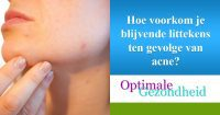 littekens en acne