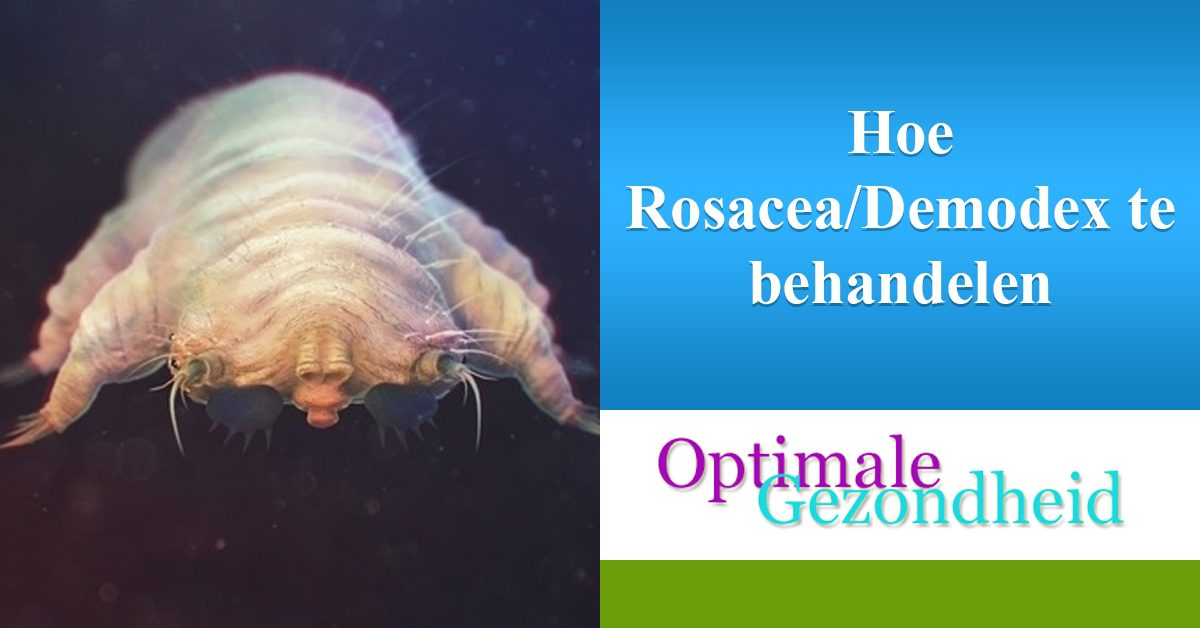 rosacea en demodex