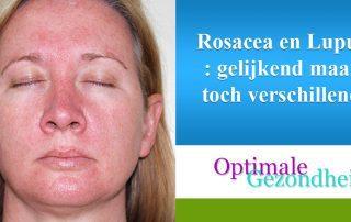 rosacea en lupus
