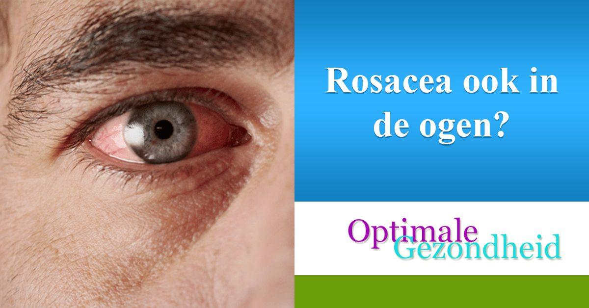 rosacea in de ogen