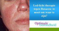 licht therapie en rosacea