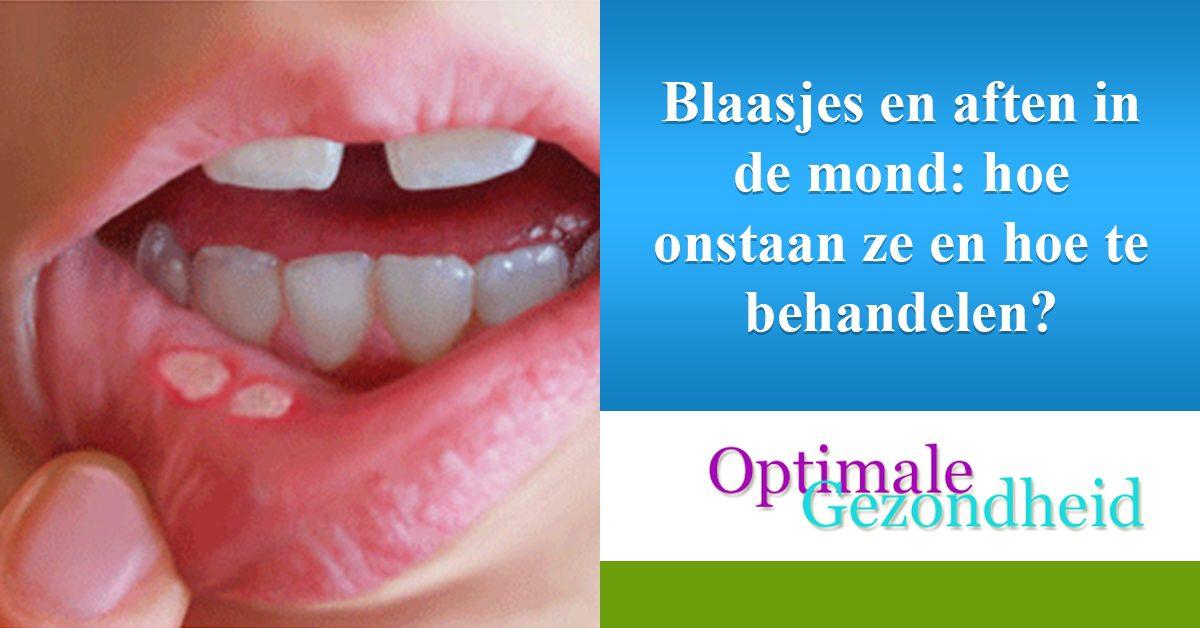 https://www.optimalegezondheid.com/wp-content/uploads/2013/05/googole-Blaasjes-en-aften-in-de-mond-hoe-onstaan-ze-en-hoe-te-behandelen_.jpg