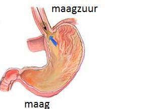 natuurlijke oplossing maagzuur