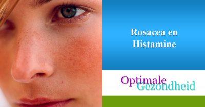 Rosacea en Histamine