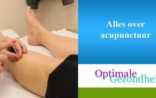 Alles over acupunctuur