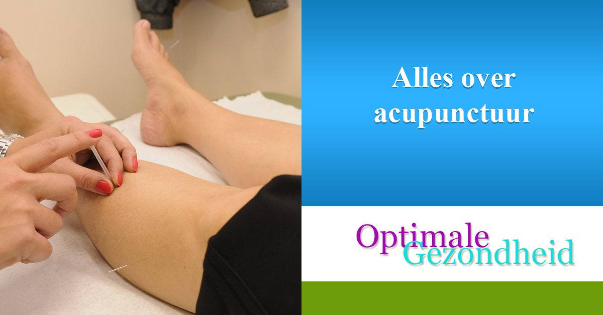 Alles over acupunctuur