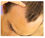 tips tegen haaruitval en kaalheid