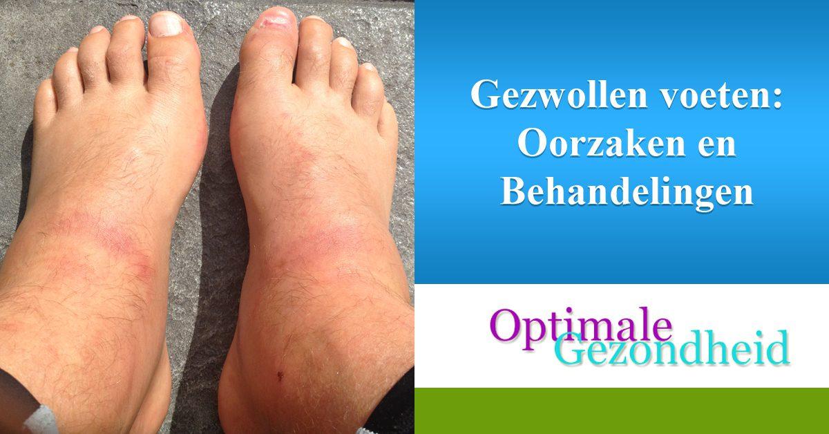 Gezwollen voeten Oorzaken en Behandelingen