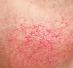 Couperose behandeling tips