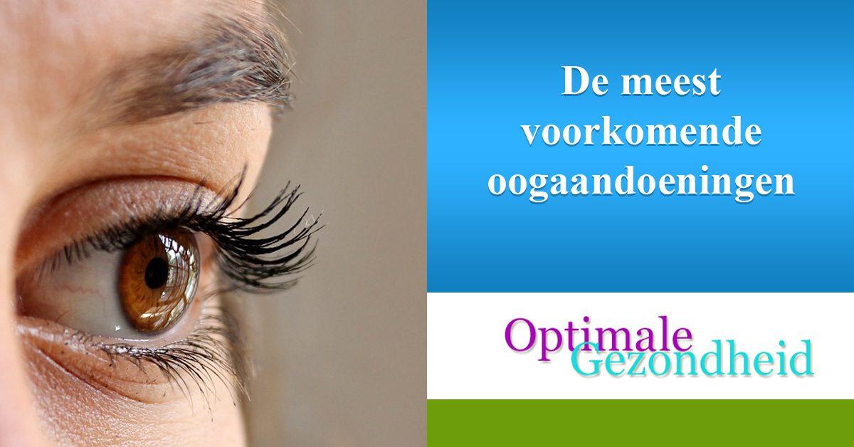 De meest voorkomende oogaandoeningen