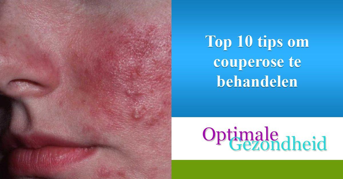Top 10 tips om couperose te behandelen