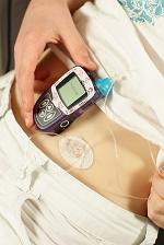 Insulinepen of juist een insulinepomp