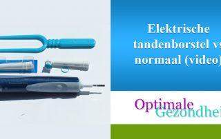 Elektrische tandenborstel vs normaal (video)