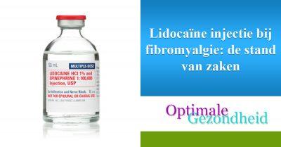 Lidocaïne injectie bij fibromyalgie de stand van zaken
