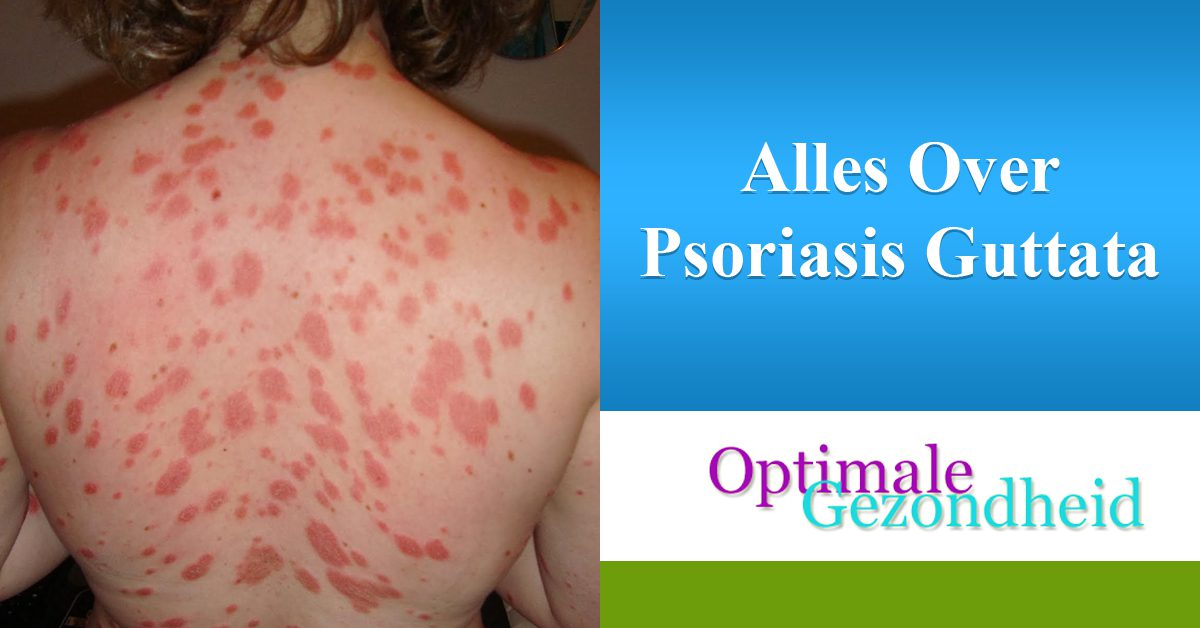 Alles Over Psoriasis Guttata