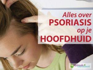 Psoriasis op je hoofdhuid: Wat kan ik eraan doen?
