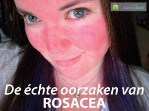 rode neus rosacea