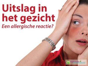 Uitslag in het gezicht: Een allergische reactie?