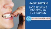 Nagelbijten: Stoppen in 10 stappen!