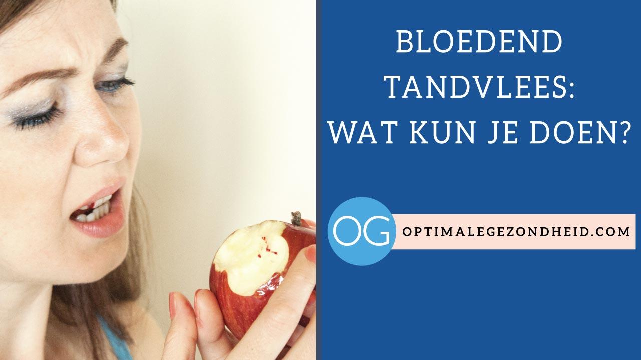 Bloedend tandvlees: Wat kun je doen?