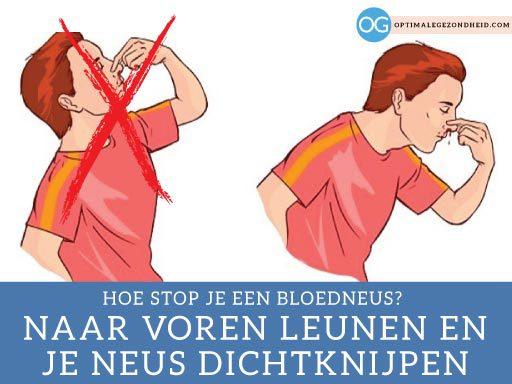 Hoe stop je een bloedneus?